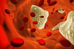 Miażdżyca - cholesterol [© frenta - Fotolia.com]