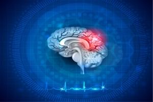 Mózg wie, że nie żyjesz... świadomość pozostaje na jakiś czas po śmierci? [Fot. reineg - Fotolia.com]