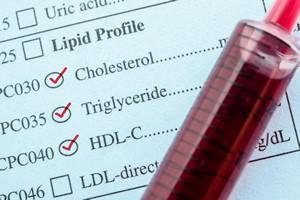 Nadmiar triglicerydów - jak zmniejszyć ich poziom bez leków [© gamjai - Fotolia.com]