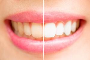 Najwięksi wrogowie białych zębów. Co powoduje przebarwienia? [© jayzynism - Fotolia.com]