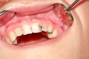 Nawyki, które najbardziej niszczą zęby [Fot. DrTI - Fotolia.com]