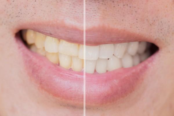 Nie chcesz przebarwień zębów? Unikaj tych produktów [Fot. Korn V. - Fotolia.com]