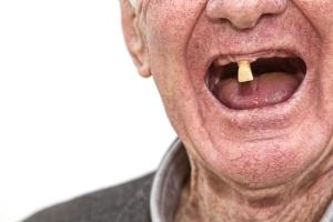 Nie dbasz o zęby? Na starość poniesiesz konsekwencje [Fot. ellisia - Fotolia.com]