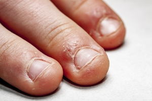 Nie obgryzaj paznokci - grozi ci infekcja [Fot. Lukassek - Fotolia.com]