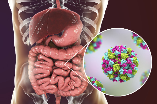 """Norowirusy - czy da się uniknąć """"grypy żołądkowej"""" [Fot. Kateryna_Kon - Fotolia.com]"""
