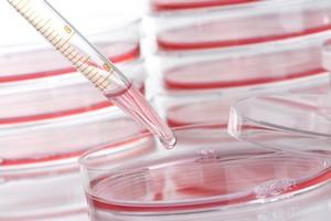 Nowe badania na ludziach dają nadzieję chorym na Alzheimera [©  Sven Hoppe - Fotolia.com]