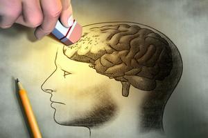Nowe badania nad schorzeniami mózgu [© Andrea Danti - Fotolia.com]