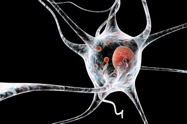 Nowy lek szansą dla chorych na Parkinsona [Fot. Kateryna_Kon - Fotolia.com]