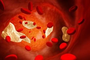 O cholesterolu słów kilka [fot. Tajemniczy cholesterol]