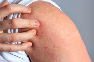 Odparzenia i nie tylko. Te problemy skórne mogą dotknąć każdego [© juefraphoto - Fotolia.com]