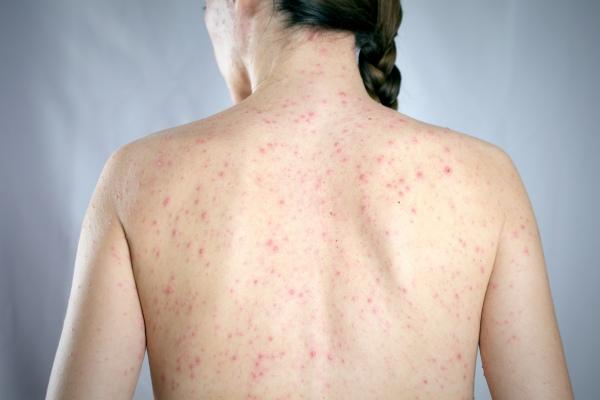 Odra - w ubiegłym roku najwyższa liczba zachorowań w Europie [Fot. SecondSide - Fotolia.com]