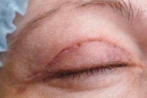 Opadające powieki: pomoże chirurg  [Fot. ivandanru - Fotolia.com]