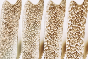 """Osteoporoza - co warto wiedzieć o """"cichym złodzieju kości""""? [Fot. crevis - Fotolia.com]"""