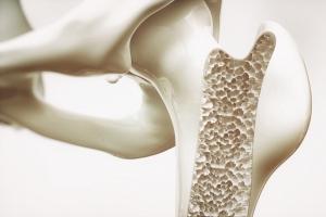Osteoporoza. Zagrożone głównie kobiety [Fot. crevis - Fotolia.com]