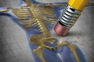 Osteoporoza [© freshidea - Fotolia.com]