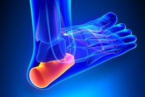Ostroga piętowa: jak leczyć przykrą chorobę stóp [© decade3d - Fotolia.com]