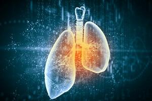 POChP - wciąż tajemnicza i groźna choroba cywilizacyjna [© Sergey Nivens - Fotolia.com]