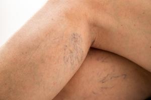 Pajączki na nogach - czy można ich uniknąć? [Fot. doroguzenda - Fotolia.com]