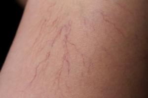 """""""Pajączki"""" na nogach - jak się ich pozbyć? [Fot. madian - Fotolia.com]"""