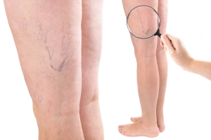 Piękne nogi na lato. Kilka praktycznych porad [Fot. T.Agrici - Fotolia.com]