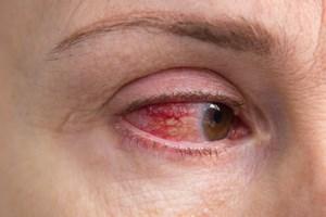 Pierwsza pomoc przy mechanicznych urazach oka [© kvasof - Fotolia.com]