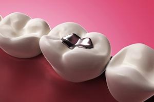 Plomby amalgamatowe: zagrożenie w ustach? [© Sebastian Kaulitzki - Fotolia.com]