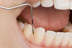 Płytka nazębna - wróg zdrowych zębów [© Christoph Hähnel - Fotolia.com]