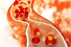 Podwyższony cholesterol - czy daje jakieś objawy [Fot. hywards - Fotolia.com]