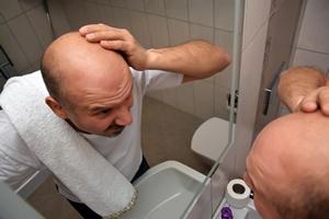 Polacy wstydzą się łysiny. Jak odzyskać gęste włosy? [© yahyaikiz - Fotolia.com]