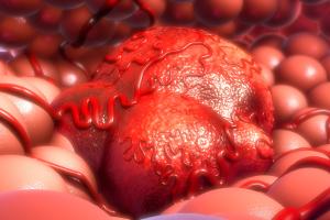 Pora jedzenia i spania a rak - istnieje związek [Fot. 7activestudio - Fotolia.com]