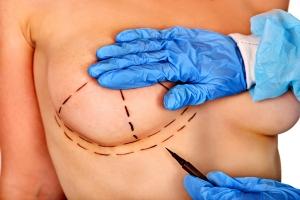 Powiększanie piersi: implanty czy lipofilling? [Fot. Gennadiy Poznyakov - Fotolia.com]