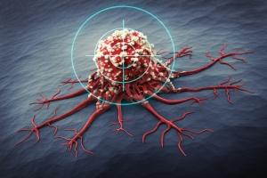 Powszchne mity na temat raka [Fot. psdesign1 - Fotolia.com]