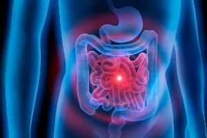 Probiotyki: wsparcie w leczeniu zespołu jelita drażliwego [Fot. psdesign1 - Fotolia.com]