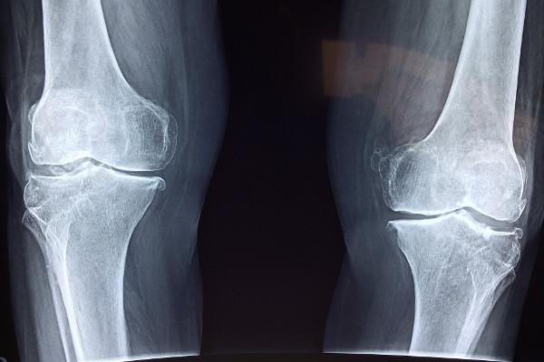 Problemy z kolanami? To wcale nie musi być chondromolacja rzepki [Fot. Pixabay.com]