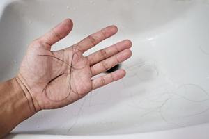 Problemy z tarczycą, a wypadanie włosów [© sasinparaksa - Fotolia.com]
