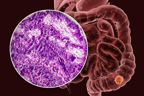Próchnica sprzyja rozwojowi raka okrężnicy? [Fot. Kateryna_Kon - Fotolia.com]
