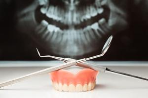 Proteza zębowa nie musi przeszkadzać [©  el lobo - Fotolia.com]