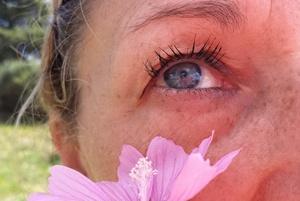 Przebarwienia: niechciana pamiątka z wakacji [© ilarialapreziosa - Fotolia.com]