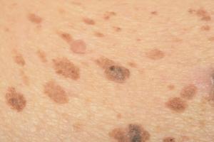 Przebarwienia skóry: problem nie tylko powakacyjny [Fot. srisakorn - Fotolia.com]