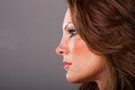 Przebarwienia skóry [© Ror - Fotolia.com]