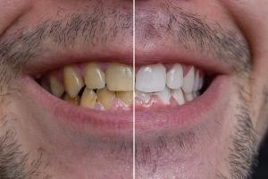 Przebarwienia zębów: przyczyny i leczenie [Fot. vchalup - Fotolia.com]