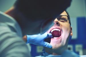 Przed podróżą lotniczą odwiedź dentystę [© chalabala - Fotolia.com]
