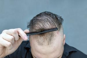 Przewlekły stres powoduje wypadanie włosów [Fot. Danny S. - Fotolia.com]