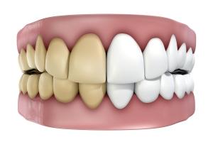 Przyczyny przebarwień zębów. Jak poradzić sobie z problemem? [Fot. alswart - Fotolia.com]