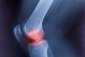 Radiosynowektomia: promieniowaniem w choroby stawów. Terapia w RZS, łuszczycy i zwyrodnieniach [Fot. alice_photo - Fotolia.com]