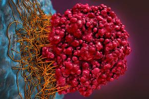 Rak - w 2018 roku będzie 18 milionów nowych przypadków choroby [Fot. Christoph Burgstedt - Fotolia.com]