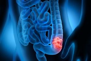 Rak jelita grubego: w diagnostyce pomaga genetyka [© psdesign1 - Fotolia.com]