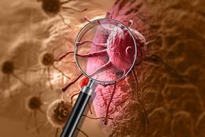 """Rak nie """"odpuszcza"""" - ostatni raport jest alarmujący [Rak, © vitanovski - Fotolia.com]"""