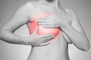 Rak piersi: w oczekiwaniu na nowe terapie [© SENTELLO - Fotolia.com]