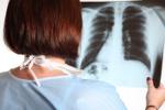 Rak p�uca g��wnym zab�jc�. Jest raport o epidemiologii nowotwor�w w Polsce [©  Andrey Kiselev - Fotolia.com]